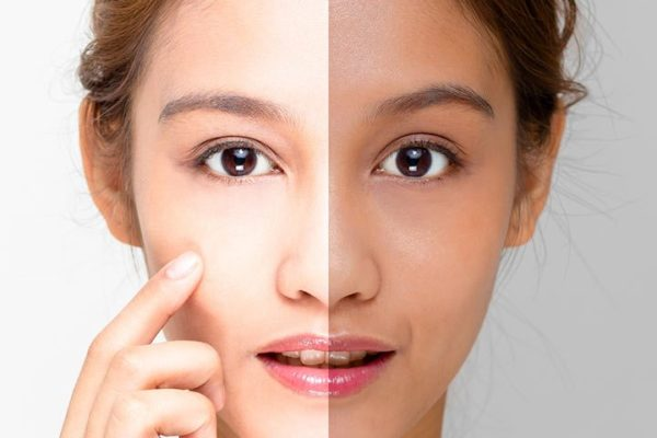 Home Remedies to Get Fair and Glowing Skin