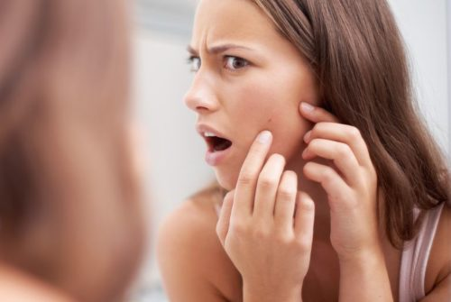 10 Tips to Prevent Pimples and Acne at Home