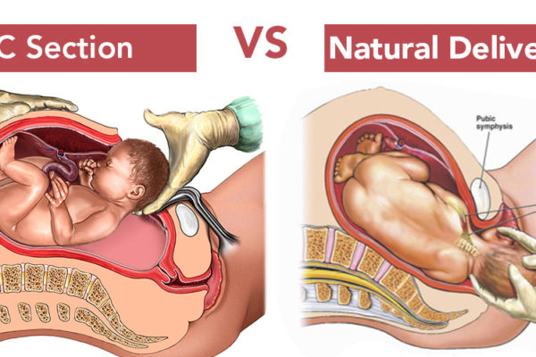 Pros and Cons of C-Section v/s Normal Delivery