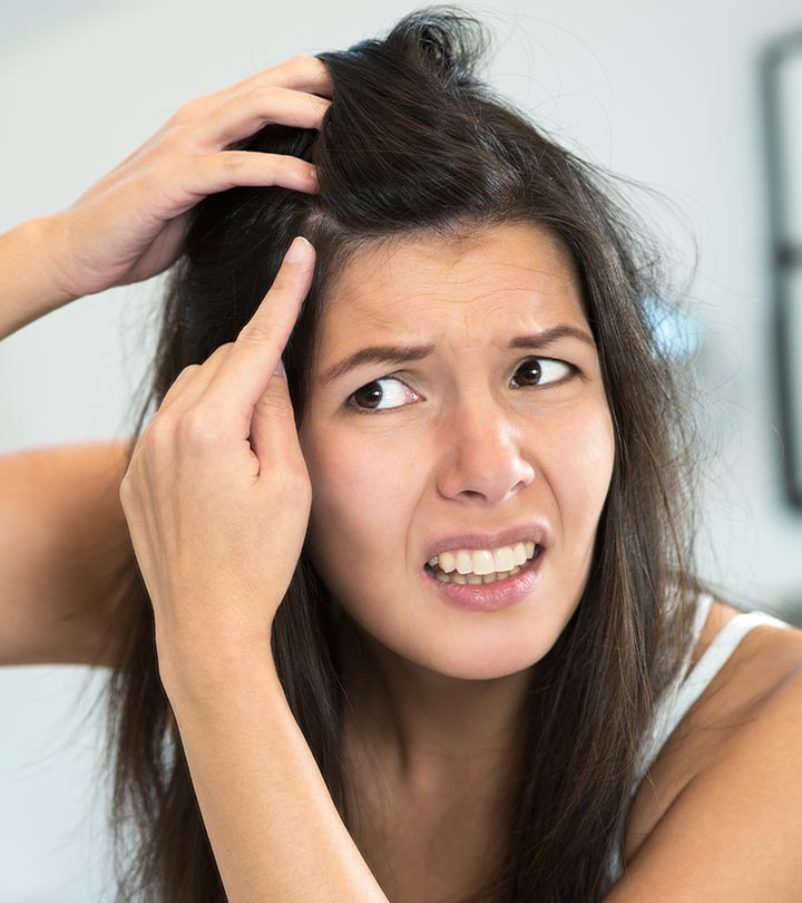 What is Dandruff and How to Remove it Permanently