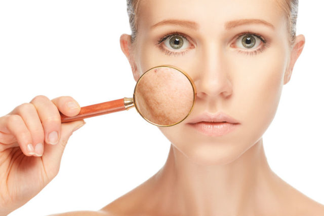 Best Ways to Reduce Dark Spots and Pigmentation to Get Beautiful Skin