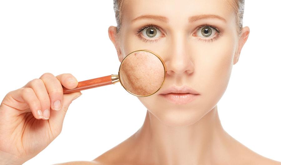 Best Ways to Reduce Dark Spots and Pigmentation to Get Beautiful Skin